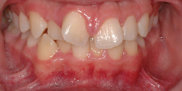 Case 4 - Before